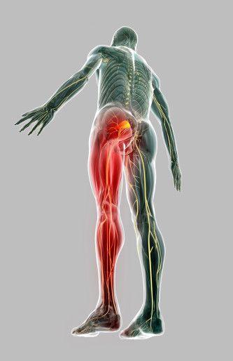 prolaps i korsryggen symptomer