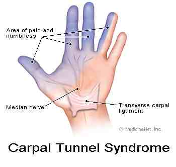 carpal tunnel syndrom øvelser