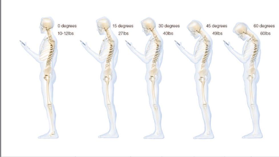 Belastningen på nakken øker ifølge studien eksponensielt med vinkelen på nakken. Ved en positur med 60 graders vinkel viser studien en belastning på 27,2 kilo på nakken.